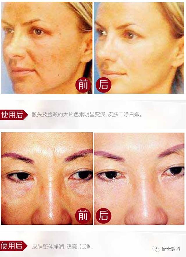 瑞士微科皮肤问题改善对比