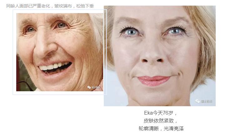 瑞士微科皮肤机能再造Dr.Horst博士的太太Eka女士