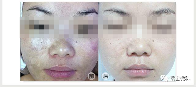 局部过敏泛红现象消失,肤质变得水润有光泽