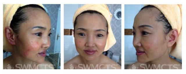 通过干预套的调理后,皮肤干燥泛红的现象也逐渐得到改善,肤色也变得干净透亮