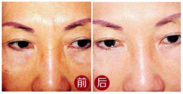 脸上色素沉淀有所变淡,客人感觉皮肤呼吸都通畅