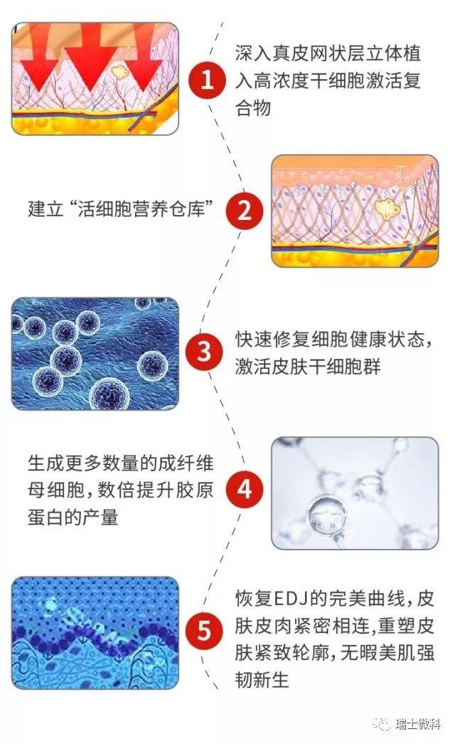 4D立体全效抗衰疗程
