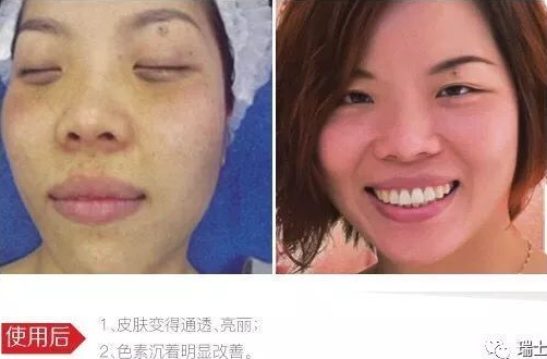 罗女士使用细胞净化干预疗程前后对比