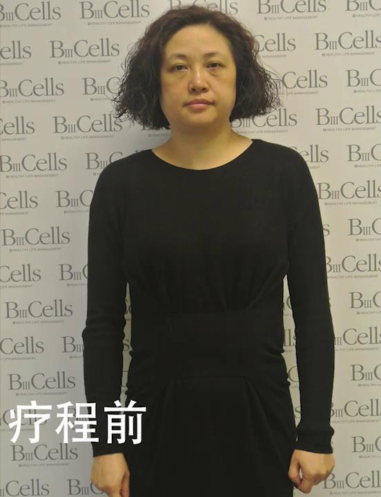 疗程前,张女士皮肤松弛下垂,特别是眼部周围的皮肤,眼袋明显,面部筋膜结节,骨骼错位,导致面部轮廓不清晰,所以整体看起来,整个人精神欠佳。