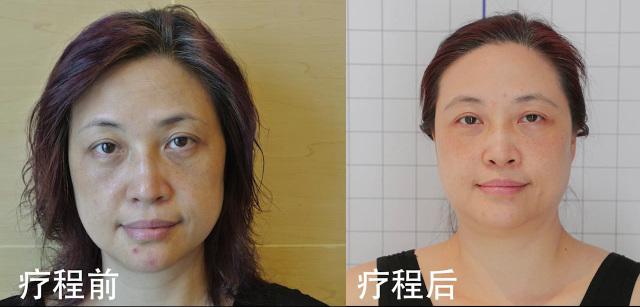 张女士疗程前后的变化