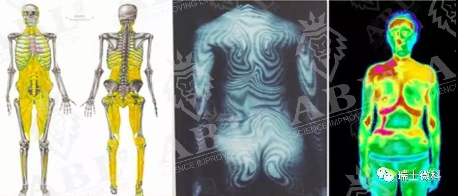 并由于地心引力以及长期的不良体态,身体筋膜发生移位粘连,神经传导机能发生障碍