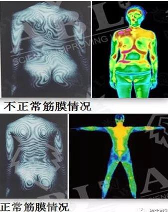 调整身体筋膜,纠正轮廓下垂移位,调整五官变形