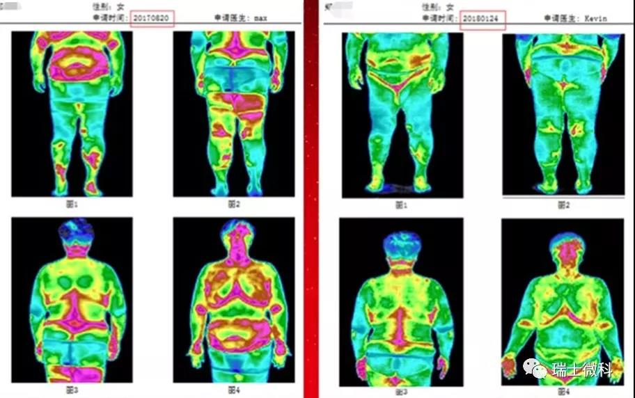 身体检测图