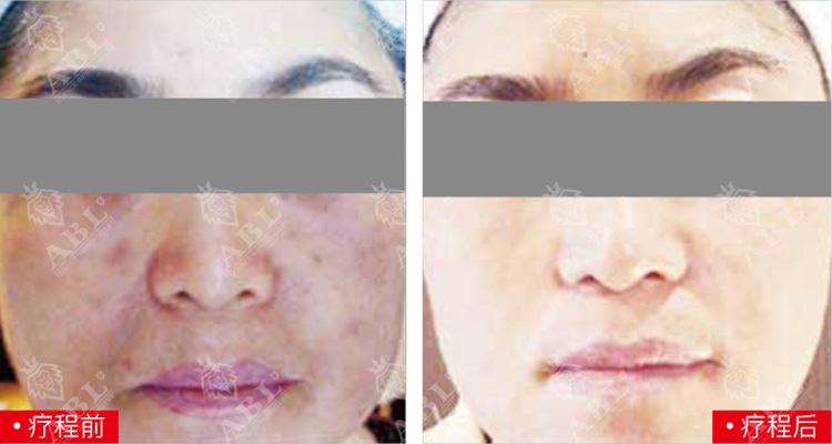 坚持使用疗程后客人皮肤的变化