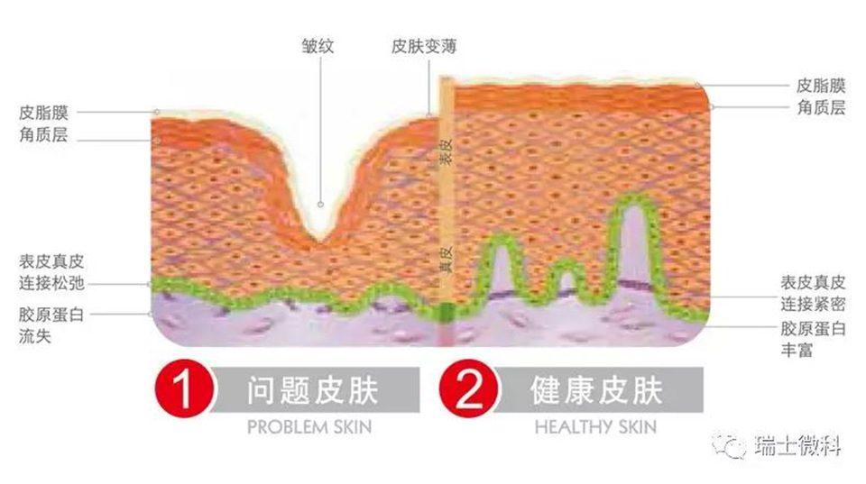 问题皮肤与健康皮肤比较