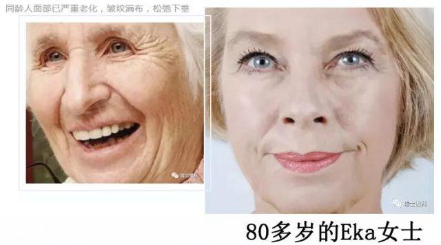 坚持使用微科皮肤健康管理系统维护皮肤机能年轻态的Eka女士,80多岁了,皮肤依然紧实,饱满,看起来比同龄人年轻15-20岁!