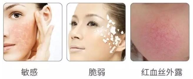 修复春季敏感肌肤
